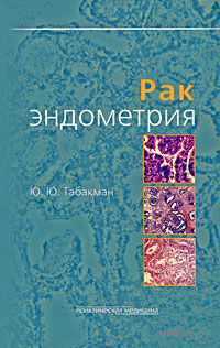 Рак эндометрия. Юрий Табакман